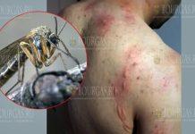 Комары атакуют жителей Силистры